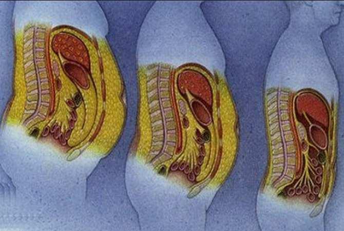 Какой жир лучше - отложение жира в брюшной полости человека